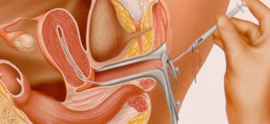 Метод введения сперматозоидов во влагалище